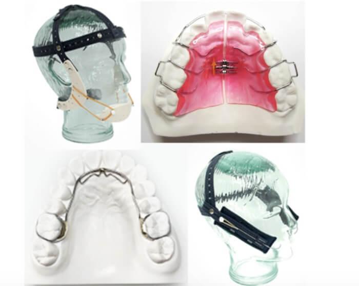 子供の矯正で使用する様々な装置