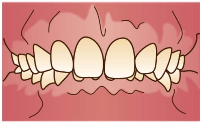 出っ歯のイラスト図