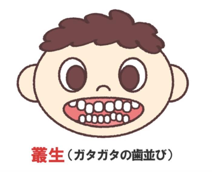 ガタガタな歯並びの子供