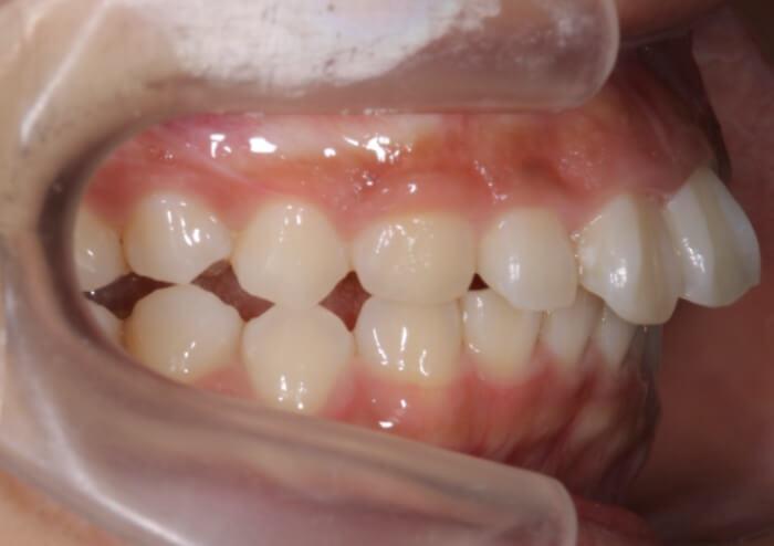 横から見た出っ歯の写真