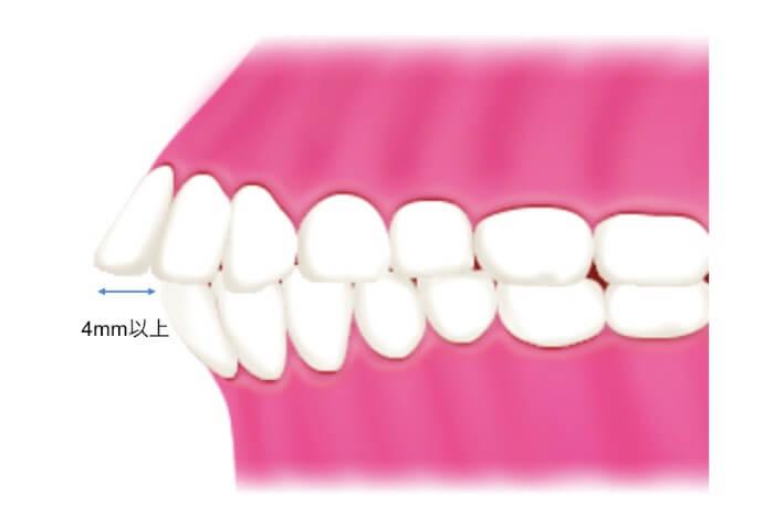 横から見た出っ歯のイラスト図