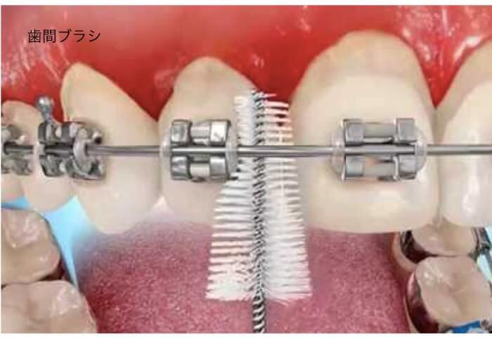 矯正器具の間に細い歯ブラシを入れている
