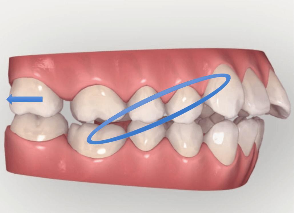 顎間ゴムを使用するとどのように歯が動くかのイメージ図